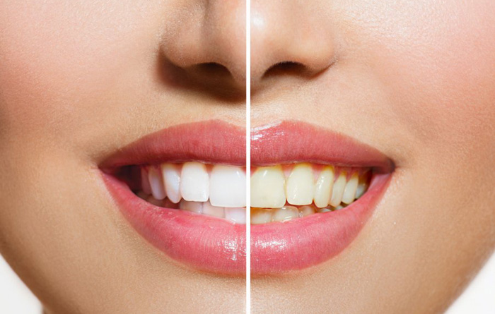 Natural Teeth Whitening Home Remedies For Dazzling Smiles